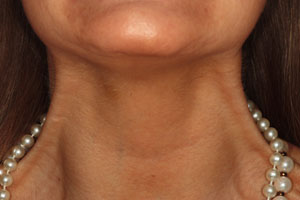 Botox injection in neck area - After