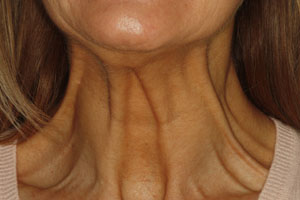 Botox injection in neck area - Before