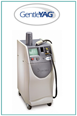 Skin Tightening with the Candela GentleYAG Laser