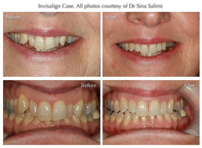 Dental Treatments by Estetica, Chertsey, Surrey