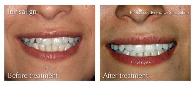 Invisalign from Estetica, Surrey