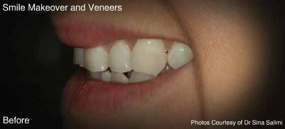 makeoverandveneers2-b