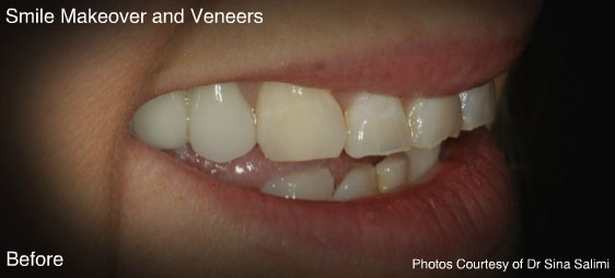makeoverandveneers3-b