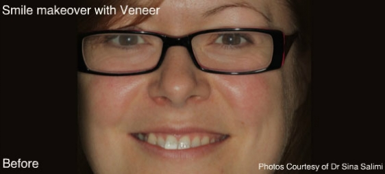 makeoverandveneers5-b