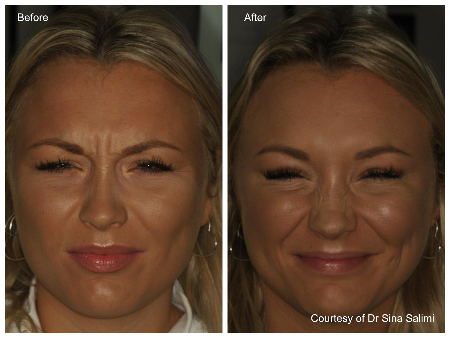 Anti-Wrinkle Gallery by Estetica, Chertsey, Surrey