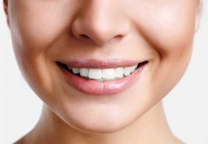 smile makeover - Veneers Image of a smile