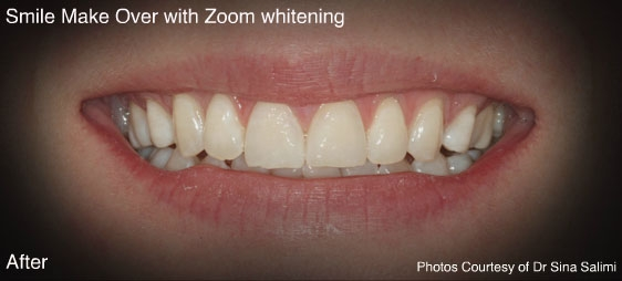 makeoverzoomwhitening1-a