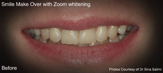 makeoverzoomwhitening1-b