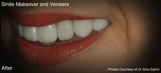 makeoverandveneers2-a