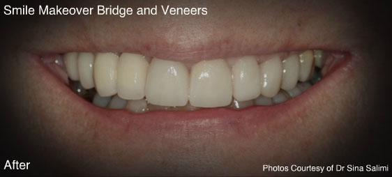 bridgesandveneers2-a