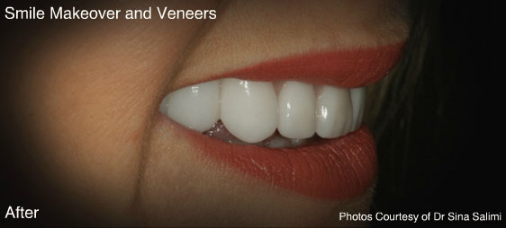 makeoverandveneers3-a
